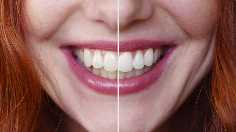 Como Clarear Dentes No Photoshop Design Culture